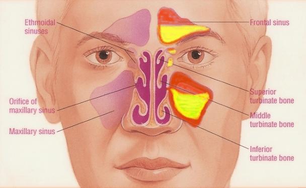 पिनासको संक्रमण फैलिए आँखामा पिप जम्न सक्छ, यसरी गर्नुस् रोकथाम